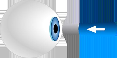 Augendruckmessung