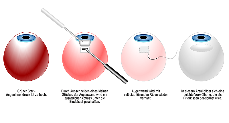 Glaukom OP