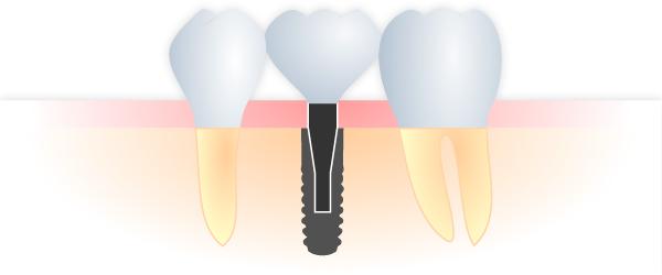 Implantate Heidelberg - Einzelnes Implantat