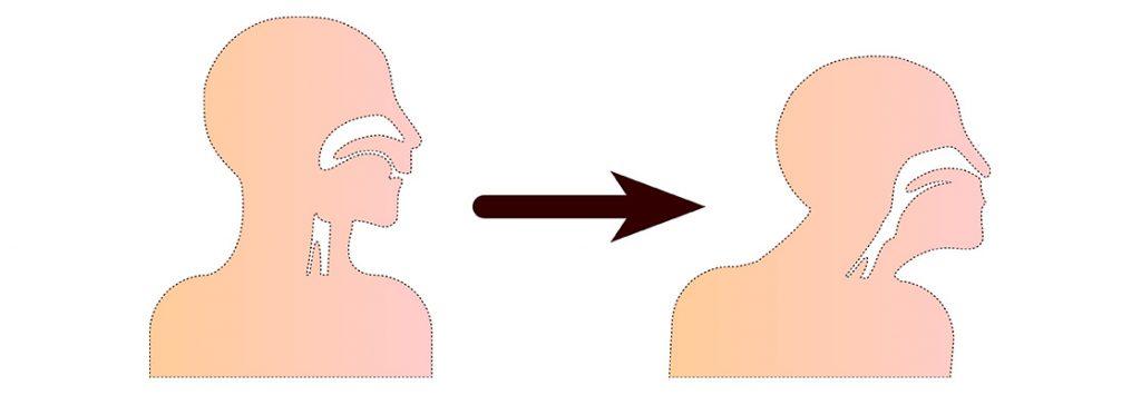 Kopfposition